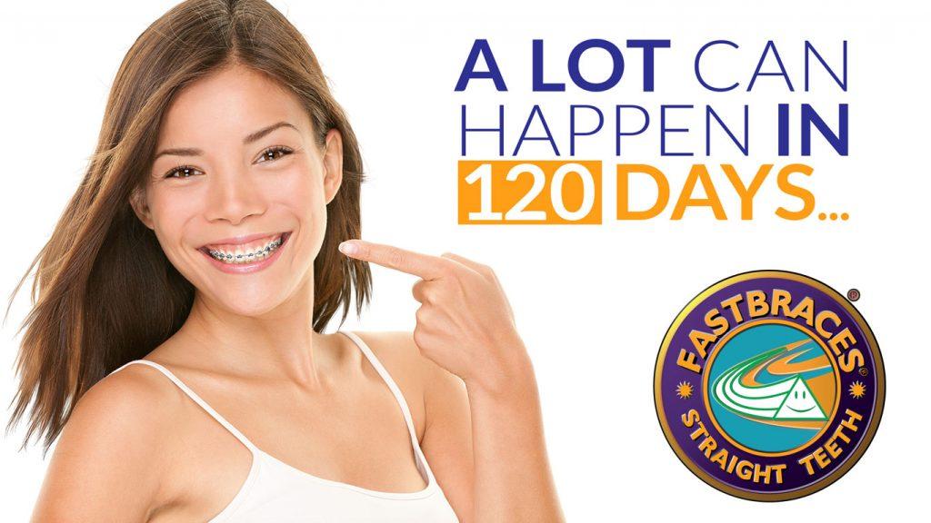 fast-braces-image-1-1024x576